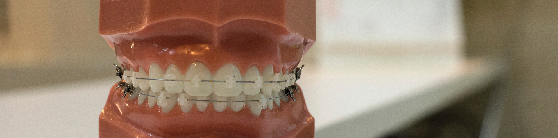 Your Dentist Explains the Different Types of Bite